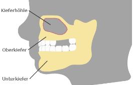 Knochenabbau im Oberkiefer