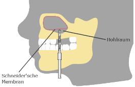 Knochenaufbau Schneidersche Membran