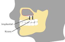4. Implantat setzen Oberkiefer