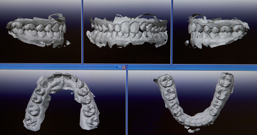 3D-diagnosetechnik-zahn-kieferstrukturen