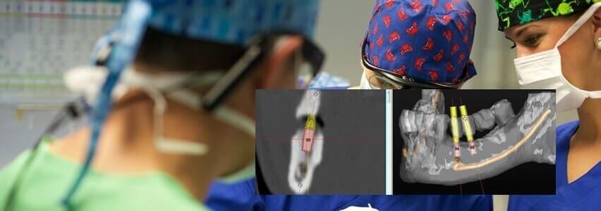 Schonende und schmerzfreie Zahnarztbehandlung mit 3D Implantologie