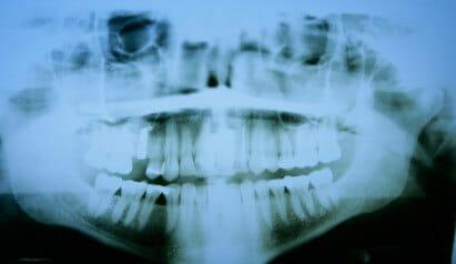 3d Röntgendiagnostik cmd