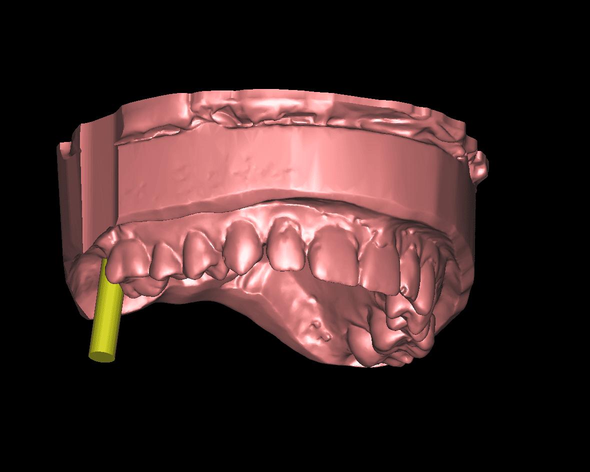 Zahnimplantat für fehlenden Zahn oben rechts endständig