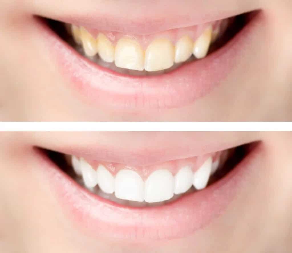 Ästhetische Zahnheilkunde - Bleaching