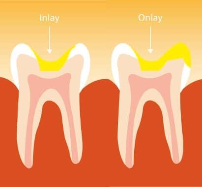 Ästhetische Zahnheilkunde - Inlays