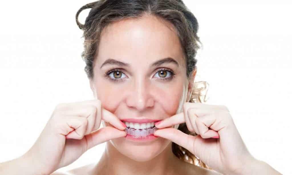 Ästhetische Zahnheilkunde - Zahnschienen