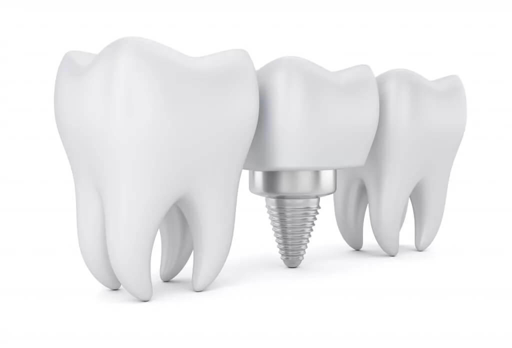Ästhetische Zahnheilkunde - Zahnimplantate