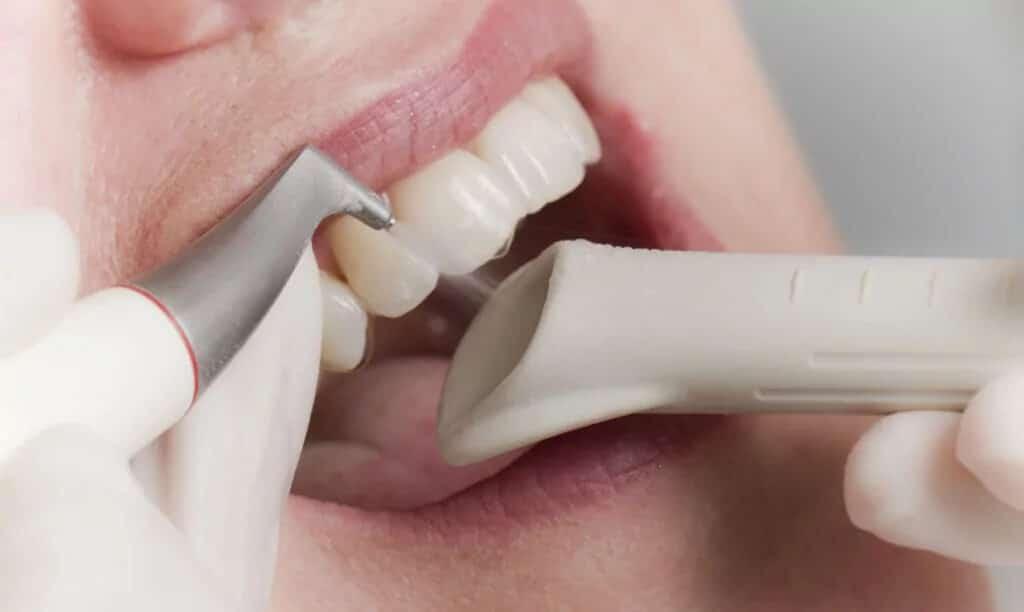 Ästhetische Zahnheilkunde - PZR