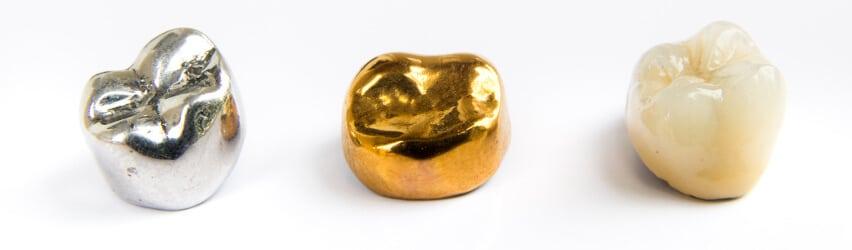 Ästhetischer Zahnersatz: Keramikverblendete Metallkronen