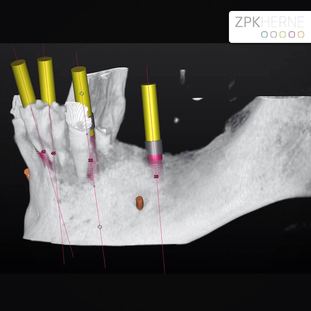 Implantatplanung - Unterkiefer - All-on-Four Konzept