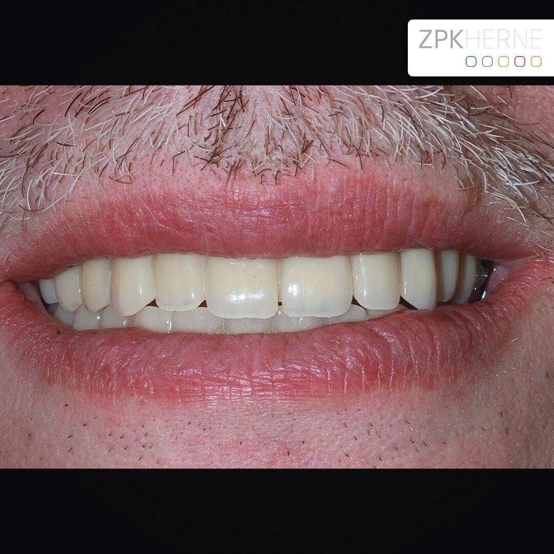 All-on-Four Zahnersatz nach OP - Patientenansicht