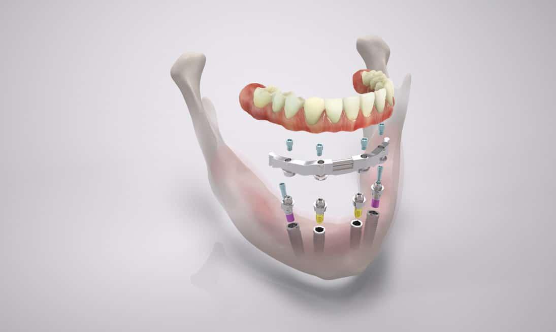 All-on-four: Zahnprothese Stegversorgung