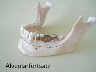 Alveolarfortsatz