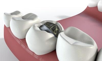 Amalgan Zahnfüllung