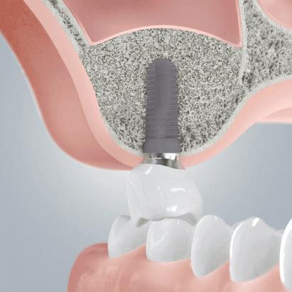 Backenzahn zahnlücke Zahn Komplett