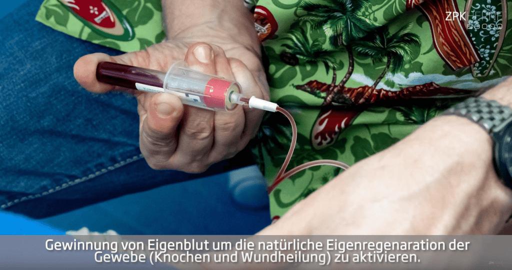 Blutabnahme zur Fibringewinnung in der ZPK Herne