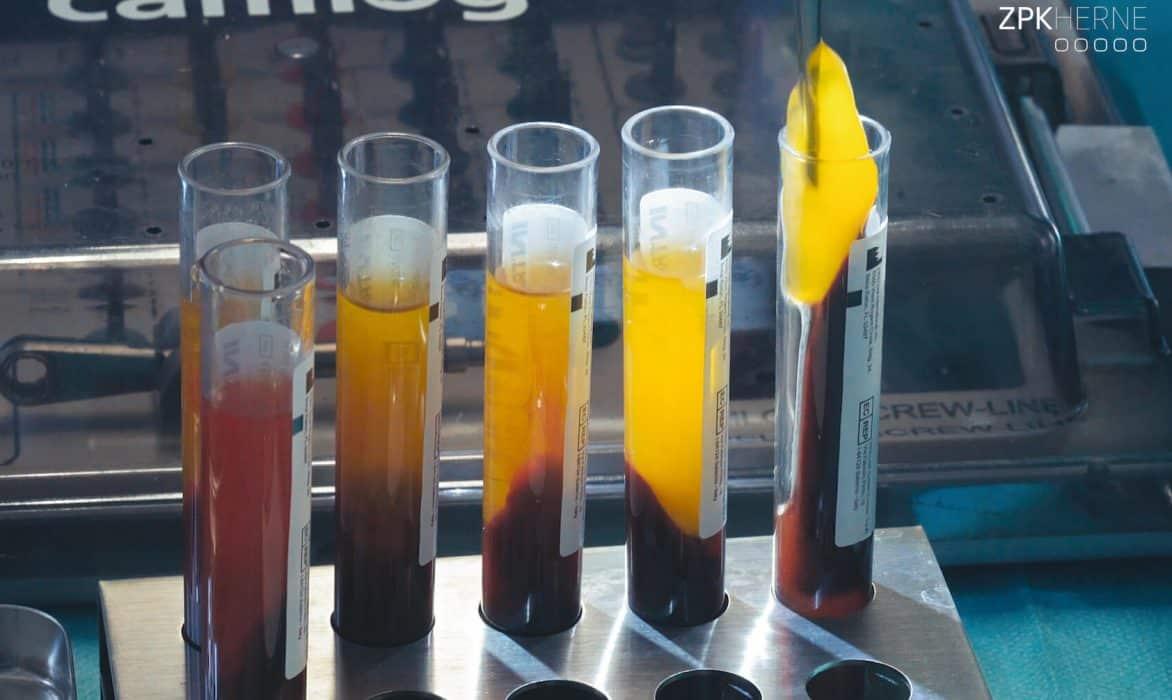 Biomaterial Eigenblut - Entnahme des Blutplasmas