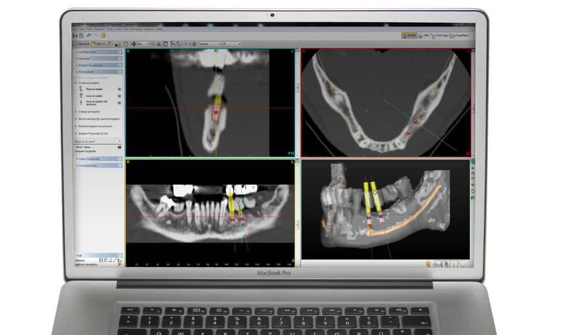 computergestuetzt 3d zahnimplantat planen