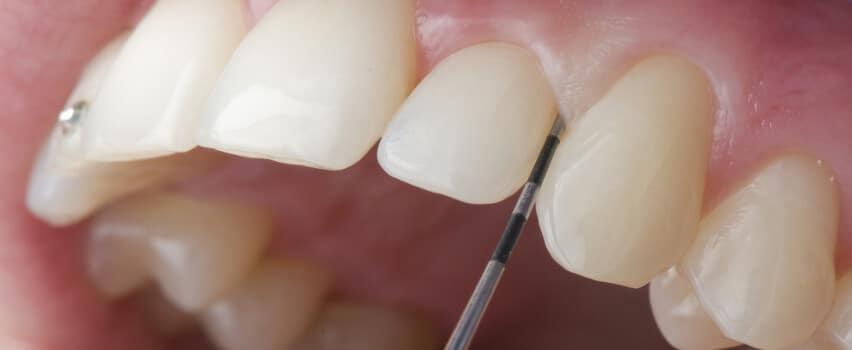 Diagnose Parodontitis