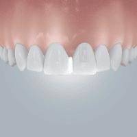 diastema schneidezähne zahnlücke