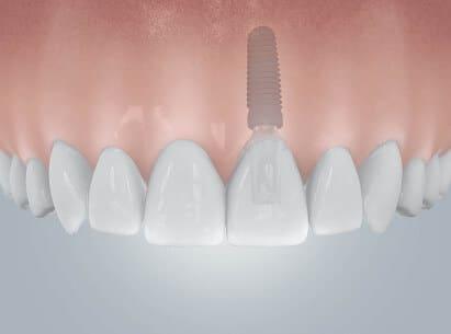 einzelzahn-implantat