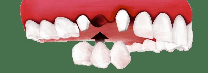 feste Brücke auf Zahnkronen