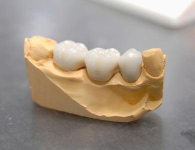 Bilder von gutem Zahnersatz
