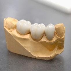 Feste Zahnbrücke