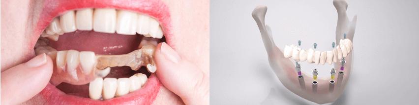 herausnehmbare brücke oder fester zahnersatz implantate