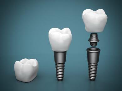 Implantat Aufbau 3 Teilig