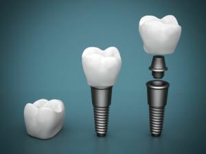 Zahnimplantate in der Oralchirurgie - Recklinghausen