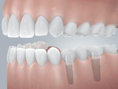 implantat brücke