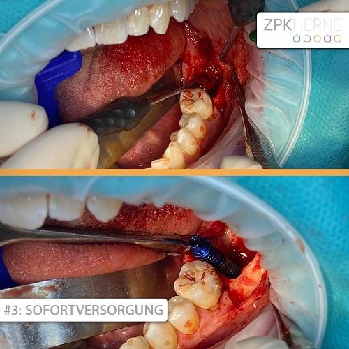 Implantat Sofortversorgung Patientenbeispiel