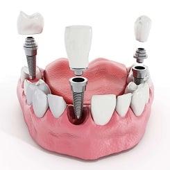 Befestigungssysteme für Implantate