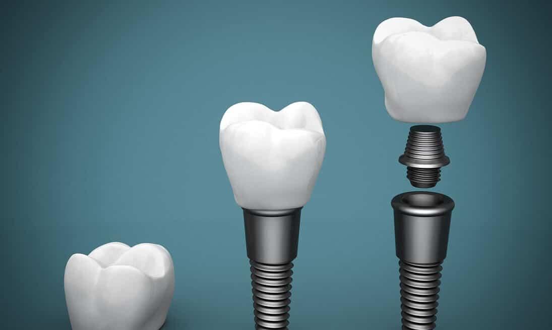 Implantate Gegenanzeigen Voraussetzungen
