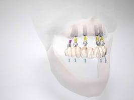 implantatgetragene-zahnprothese-ohne-gaumenplatte