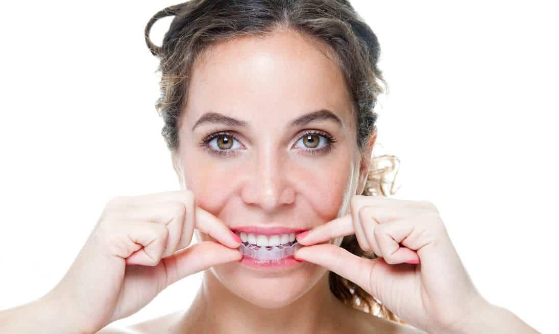 invisalign unsichtbare zahnspange
