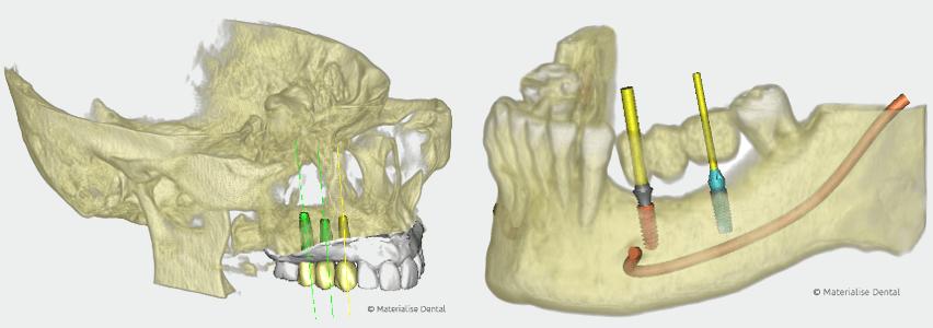 Implantologie | Implantatversorgung aus einer Hand