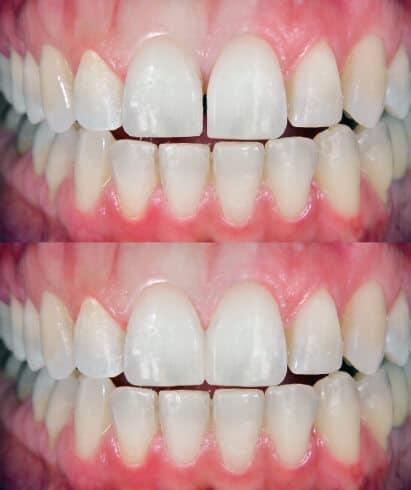 Zahnlücke schliessen Komposit zahnverbreiterung