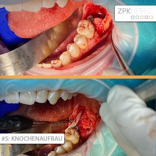 Knochenaufbau Patientenbeispiel Sofortimplantation
