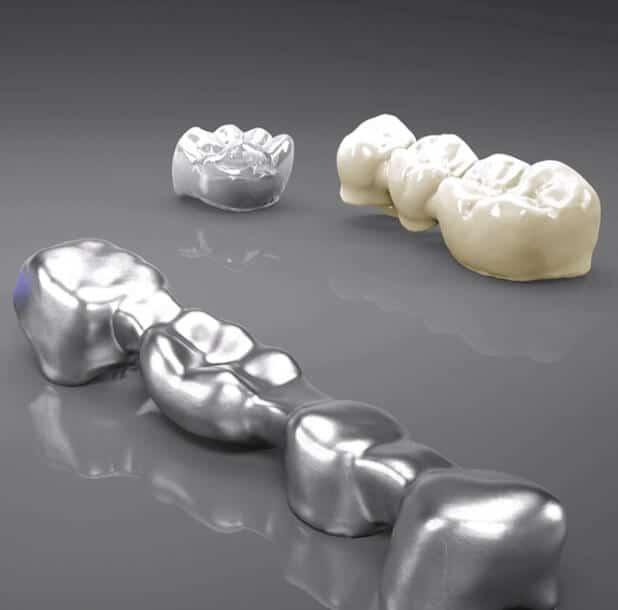 Zahnersatz-Arten: Kronen und Brücken aus Edelmetall oder Keramik