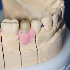 Zahnprothetik für Backenzähne