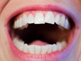 Natürlich schöne Zähne