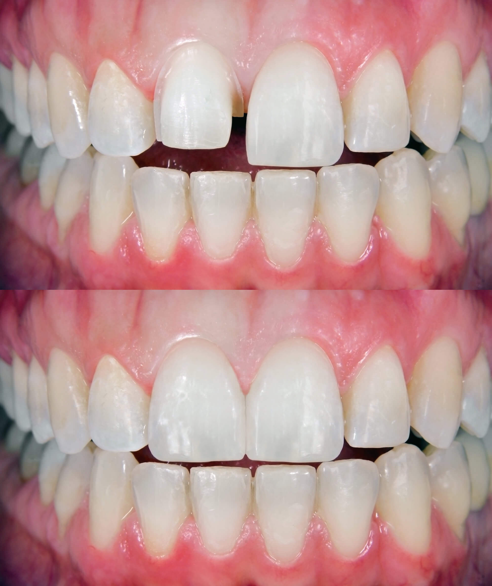 Veneers Frontzähne - Vorher / Nachher