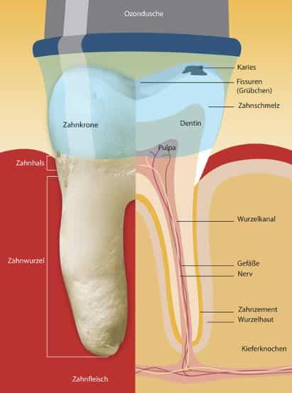 ozonbehandlung zahnarzt