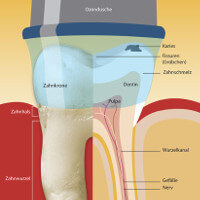 ozontherapie behandlung ohne bohrer