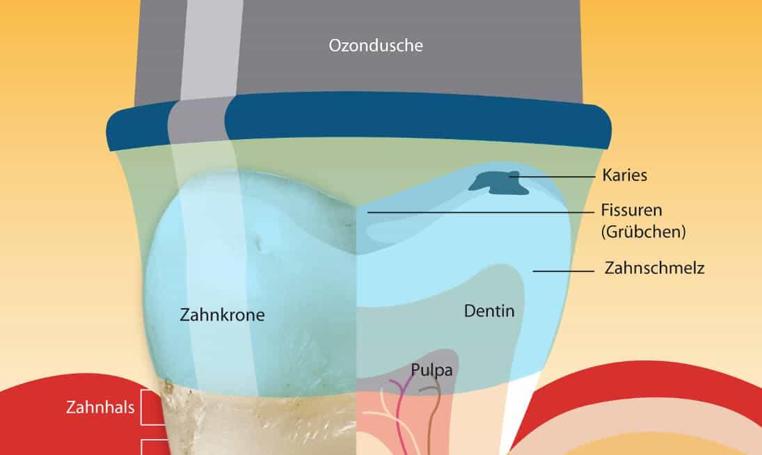 Ozontherapie Zahnmedizin
