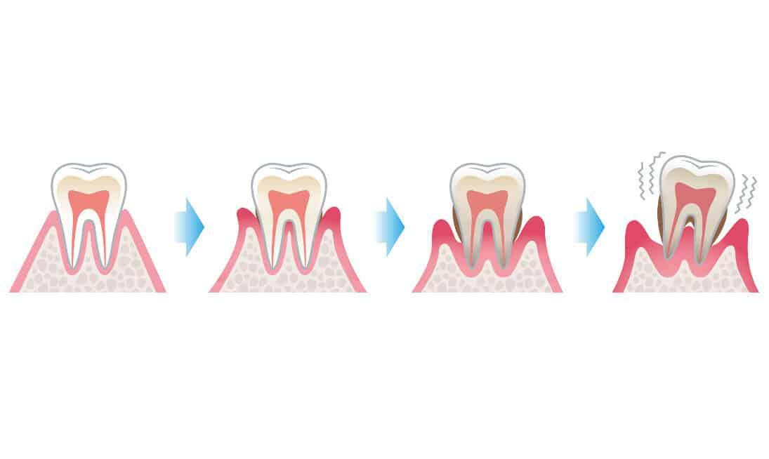 Parodontitis Diagnostik