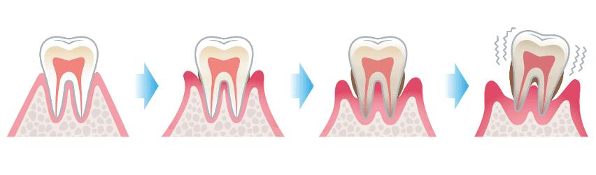 Entstehung einer Parodontitis: Knochenabbau, Zahnlockerung Zahnverlust