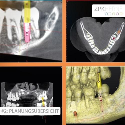 Planungsübersicht Patientenbeispiel für Sofortimplantat